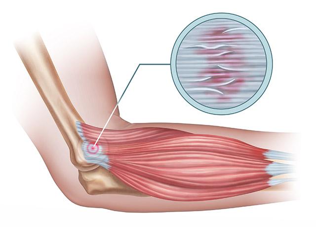 Lateralni epikondilitis (teniški komolec)