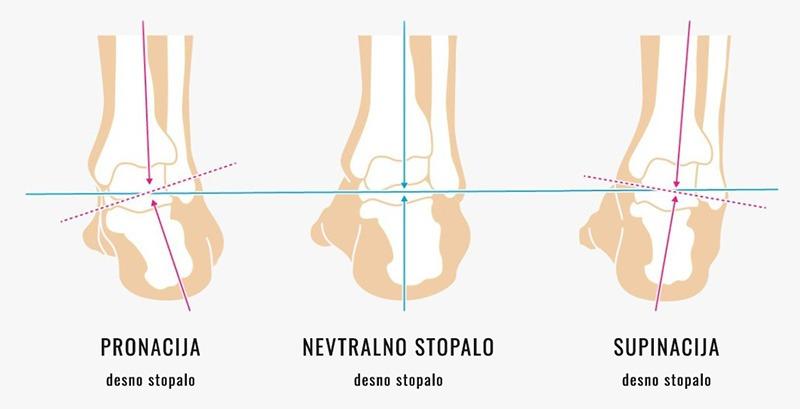 Oblika stopala - pronacija, nevtralno stopalo, supinacija