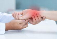 Photo of Sindrom karpalnega kanala: vse, kar morate vedeti
